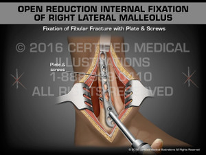 Animation of Open Reduction Internal Fixation of Right Lateral Malleolus - Medical Animation