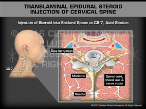 Animation of Translaminal Epidural Steroid Injection of Cervical Spine - Medical Animation