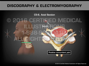 Animation of Discography & Electromyography - Medical Animation