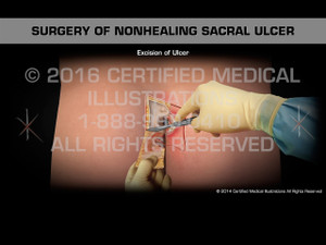 Animation of Surgery of Nonhealing Sacral Ulcer II - Medical Animation