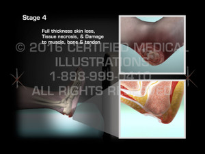 Animation of Stages of Heel Decubitus Ulcer - Medical Animation