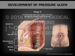 Animation of Development of Pressure Ulcer - Medical Animation