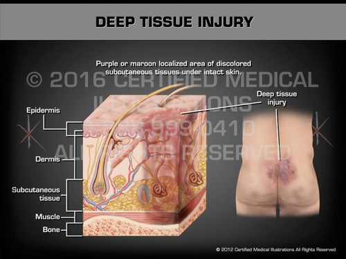 Animation of Deep Tissue Injury - Medical Animation