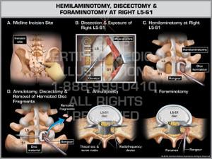 Exhibit of Hemilaminotomy, Discectomy & Foraminotomy at Right L5-S1