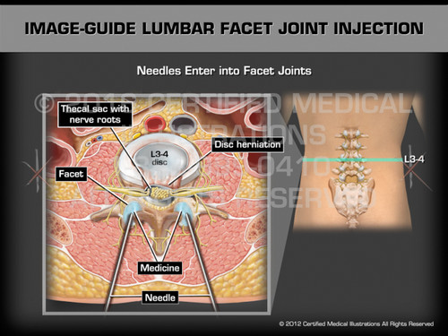 Animation of Image-Guide Lumbar Facet Joint Injection - Medical Animation