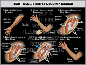 Right Ulnar Nerve Decompression