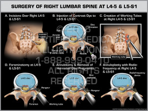 Exhibit of Surgery of Right Lumbar Spine at L4-5 & L5-S1