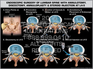 Exhibit of Endoscopic Surgery of Lumbar Spine with Annulotomy, Discectomy, Annuloplasty & Steroid Injection at L4-5