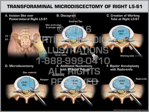 Exhibit of Transforaminal Microdiscectomy of Right L5-S1
