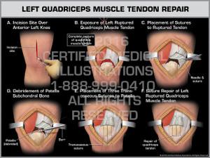 Exhibit of Left Quadriceps Muscle Tendon Repair - Print Quality Instant Download