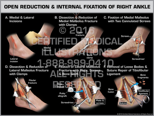Exhibit of Open Reduction & Internal Fixation of Right Ankle - Print Quality Instant Download