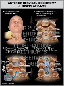 Exhibit of Anterior Cervical Discectomy & Fusion at C4-C6 - Print Quality Instant Download