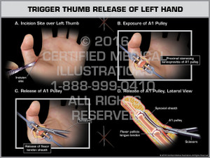 Exhibit of Trigger Thumb Release of Left Hand - Print Quality Instant Download