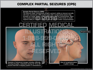Exhibit of Complex Partial Seizures (CPS) - Print Quality Instant Download