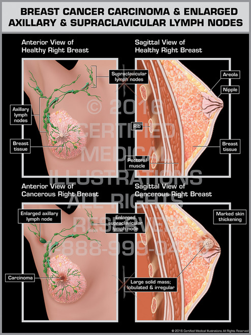 Exhibit of Breast Cancer Carcinoma & Englarged Axillary & Supraclavicular Lymph Nodes