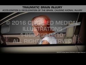 Animation of Traumatic Brain Injury - Medical Animation