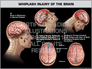 Exhibit of Whiplash Injury of the Brain