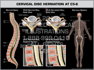 Exhibit of Cervical Disc Herniation at C5-6 - Print Quality Instant Download