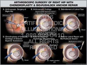 Exhibit of Arthroscopic Surgery of Right Hip with Chondroplasty & Bio-PushLock Anchor Repair