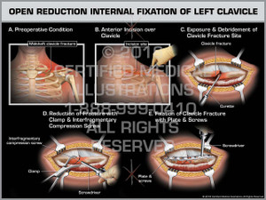 Exhibit of Open Reduction Internal Fixation of Left Clavicle - Print Quality Instant Download