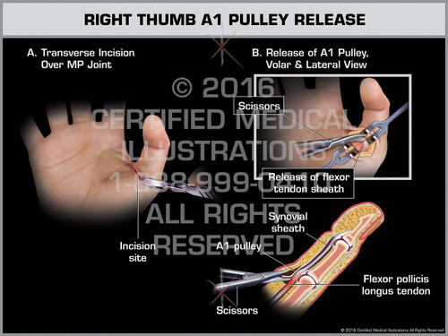 Exhibit of Right Thumb A1 Pulley Release - Print Quality Instant Download