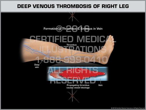 Exhibit of Deep Venous Thrombosis of Right Leg - Print Quality Instant Download