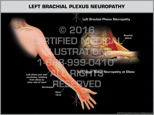 Exhibit of Left Brachial Plexus Neuropathy - Print Quality Instant Download