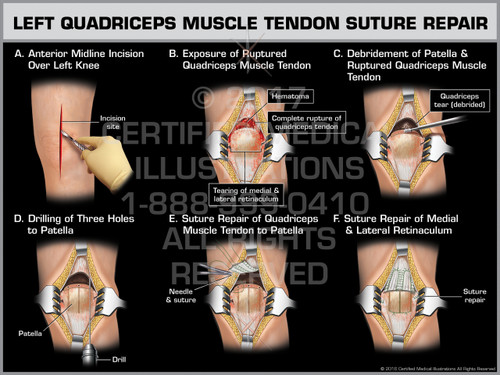 Exhibit of Left Quadriceps Muscle Tendon Suture Repair - Print Quality Instant Download