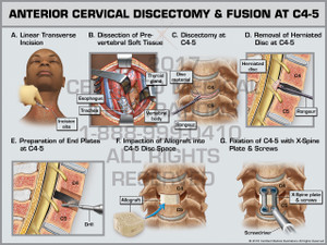 Exhibit of Anterior Cervical Discectomy & Fusion at C4-5 - Print Quality Instant Download