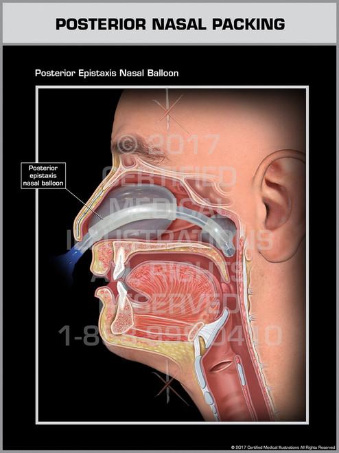 Posterior Nasal Packing