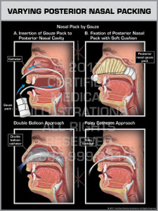 Varying Posterior Nasal Packing