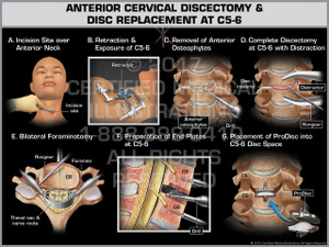 Exhibit of Anterior Cervical Discectomy & Replacement at C5-6 - Print Quality Instant Download