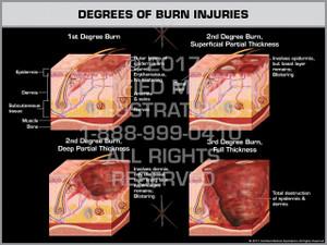 Exhibit of Degrees of Burn Injuries