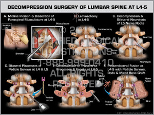 Exhibit of Decompression Surgery of Lumbar Spine at L4-5 - Print Quality Instant Download