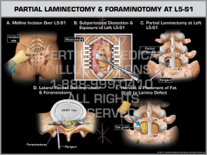 Exhibit of Partial Laminectomy & Foraminotomy at L5-S1 - Print Quality Instant Download