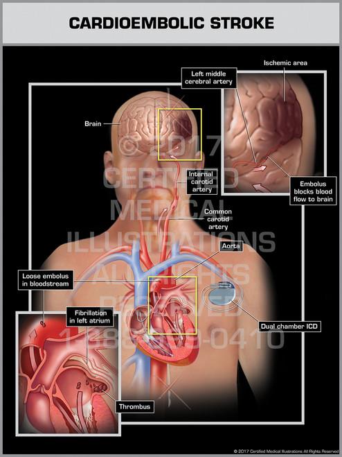 Exhibit of Cardioembolic Stroke