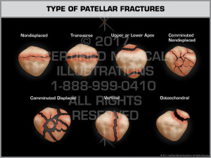 Exhibit of  Type of Patellar Fractures