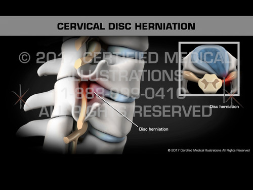 Animation of Cervical Disc Herniation