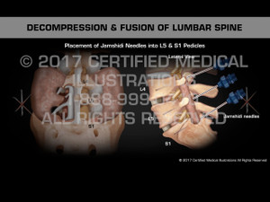 Animation of Decompression & Fusion of Lumbar Spine - Female