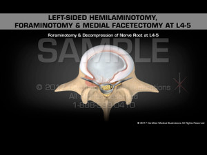 Left-sided Hemilaminotomy, Foraminotomy & Medial Facetectomy at L4-5