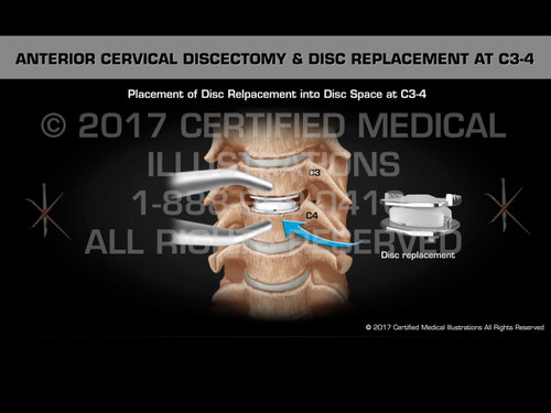 Anterior Discectomy & Disc Replacement at C3-4 - Medical Animation
