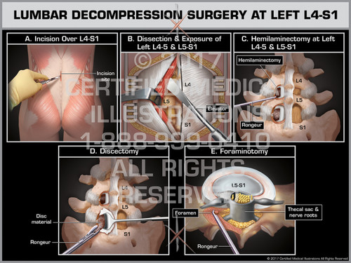 Lumbar Decompression Surgery at Left L4-S1- Print Quality Instant Download