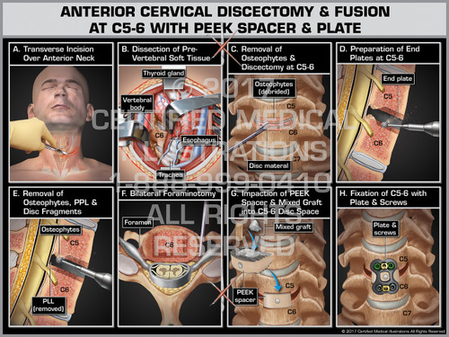 Anterior Cervical Discectomy & Fusion at C5-6 with PEEK Spacer and Plate