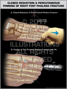 Exhibit of Closed Reduction & Percutaneous Pinning of Right Foot Phalanx Fracture- Print Quality Instant Download