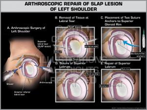 Exhibit of Arthroscopic Repair of Slap Lesion of Left Shoulder.