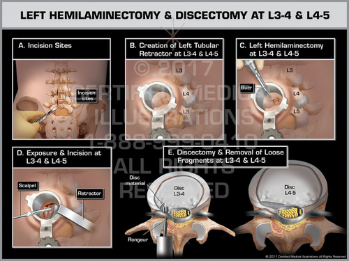 Exhibit of Left Hemilaminectomy & Discectomy at L3-4 & L4-5- Print Quality Instant Download