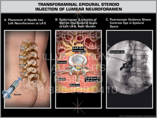 Exhibit of Transforaminal Epidural Steroid Injection of Lumbar Neuroforamen