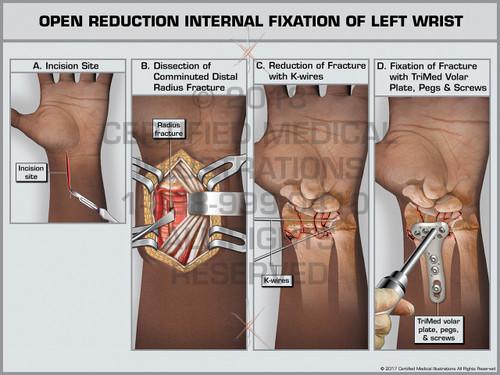 Exhibit of Open Reduction Internal Fixation of Left Wrist