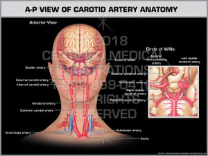 Exhibit of A-P View of Carotid Artery Anatomy
