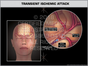 Exhibit of Transient Ischemic Attack